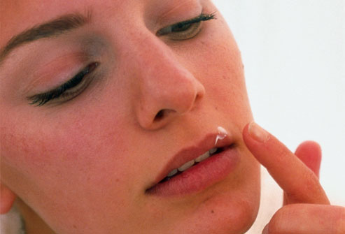 Yersin Clinic - Documents - Dealing With Cold Sores